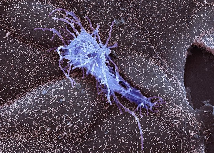 Biological Greeting Card featuring the photograph Hela Cell, Sem by