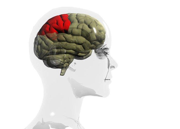 Human Body Greeting Card featuring the photograph Human Brain, Parietal Lobe by Christian Darkin