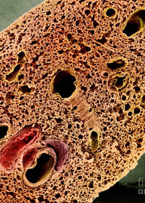 Sem Greeting Card featuring the photograph Mouse Lung, Sem by Science Source