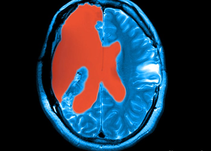 Cerebrospinal Fluid Greeting Card featuring the photograph Mri Shows Near Total Hemispherectomy by Medical Body Scans
