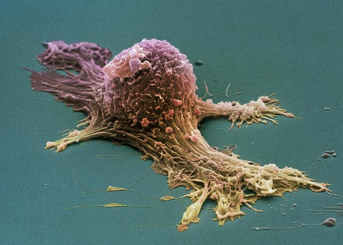 Ovarian Cancer Cell Sem Greeting Card For Sale By Steve Gschmeissner