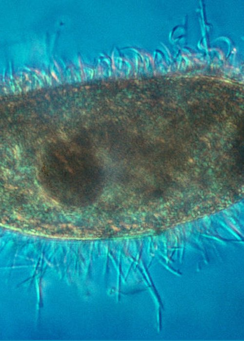 Unicellular Greeting Card featuring the photograph Paramecium With Ejected Trichocysts by Eric V. Grave