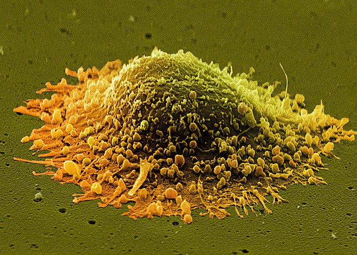 Prostate Cancer Greeting Card featuring the photograph Prostate Cancer Cell, Sem by Steve Gschmeissner