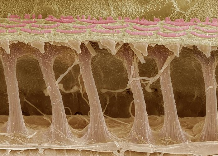 Electron Microscope Greeting Card featuring the photograph Inner Ear Hair Cells, Sem by Steve Gschmeissner