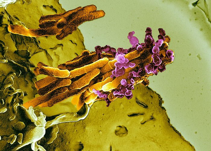 Mycobacterium Tuberculosis Greeting Card featuring the photograph Bacteria Infecting A Macrophage, Sem by