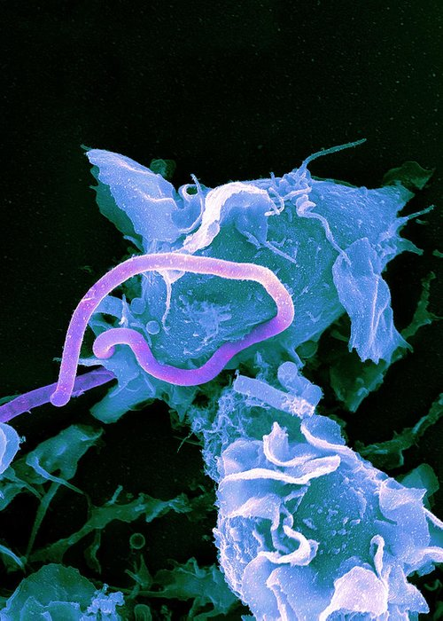 Bacillus Anthracis Greeting Card featuring the photograph Bacteria Infecting A Macrophage, Sem by