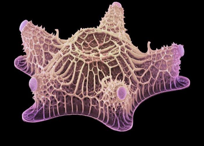 Diatom Greeting Card featuring the photograph Diatom Alga, Sem by Steve Gschmeissner