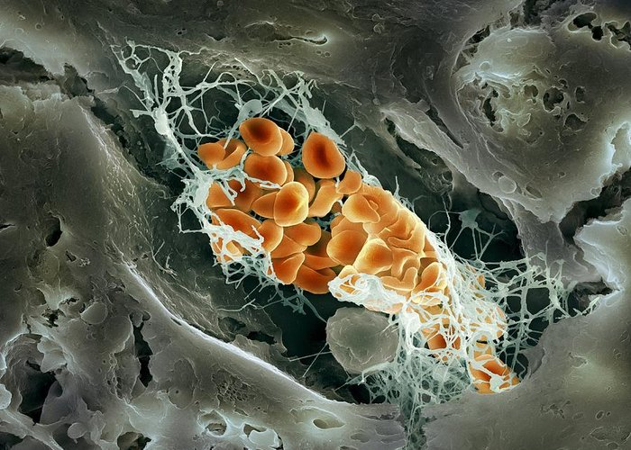 Biological Greeting Card featuring the photograph Blood Clot, Sem by