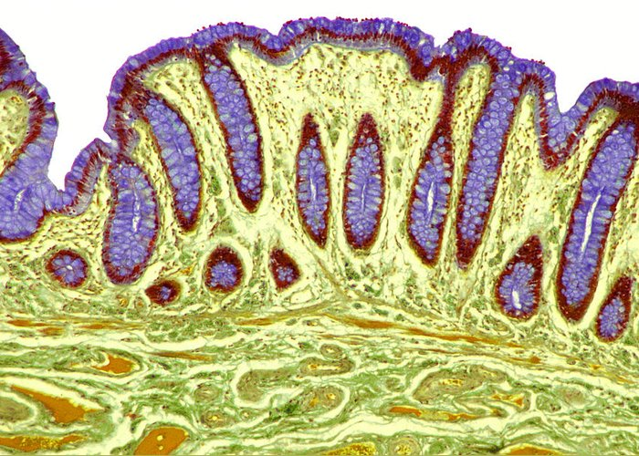Goblet Cell Greeting Card featuring the photograph Colon Lining, Light Micrograph by Steve Gschmeissner