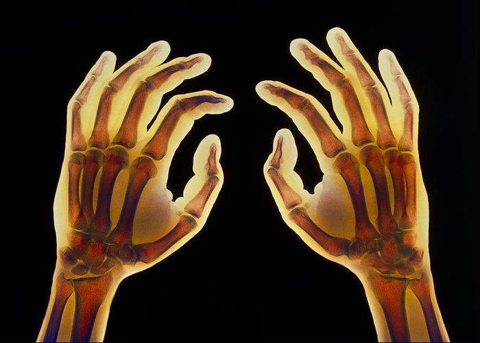 Hand Greeting Card featuring the photograph Coloured X-ray Of Healthy Human Hands by
