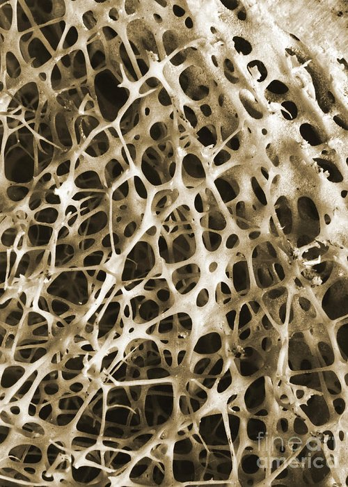 Scanning Electron Micrograph Greeting Card featuring the photograph Sem Of Human Shin Bone by Science Source