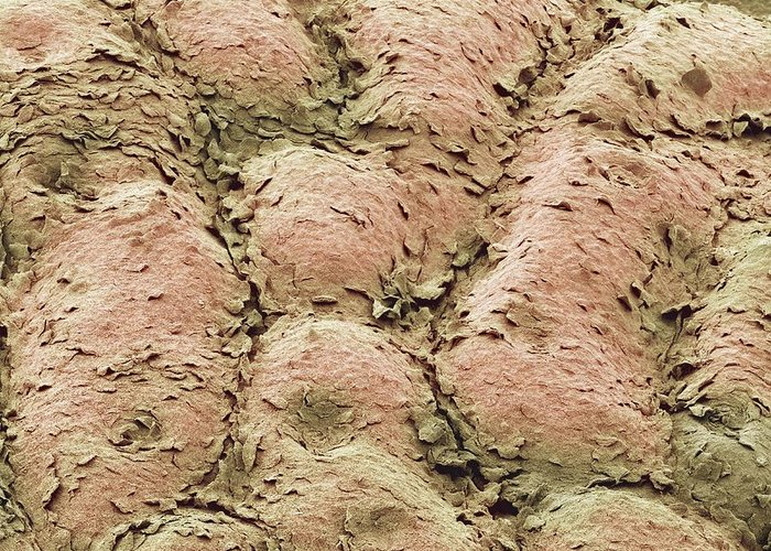 Skin Greeting Card featuring the photograph Skin Surface, Sem by Steve Gschmeissner