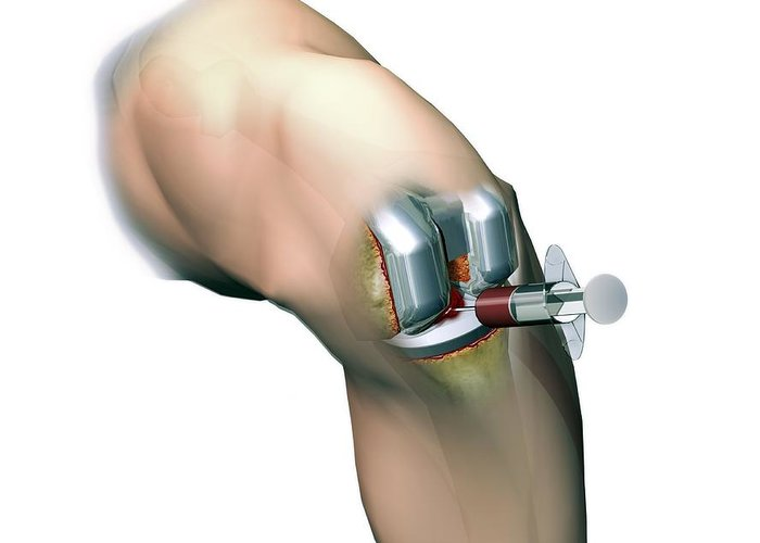 Total Knee Replacement Greeting Card featuring the photograph Woundcare Gel Therapy, Artwork by D & L Graphics