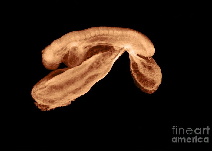 23 Day Old Greeting Card featuring the photograph 23 Day Old Human Embryo by Omikron