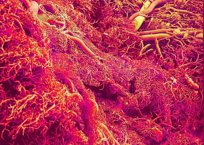 Sem Greeting Card featuring the photograph Blood Vessels, Sem by Susumu Nishinaga