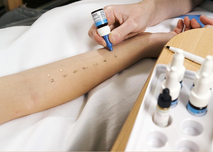 Equipment Greeting Card featuring the photograph Allergy Test by Paul Rapson
