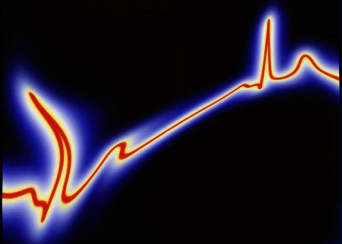 Ecg Greeting Card featuring the photograph Heart Disease: Artwork Of An Irregular Ecg Trace by Mehau Kulyk