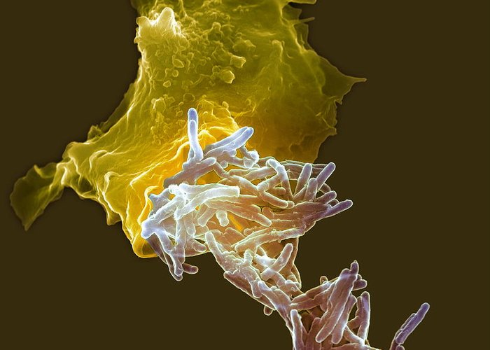 Mycobacterium Bovis Greeting Card featuring the photograph Macrophage Engulfing Tuberculosis Vaccine by