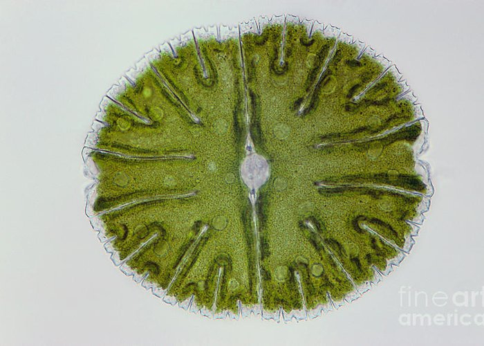Science Greeting Card featuring the photograph Micrasterias Sp. Algae Lm by M. I. Walker