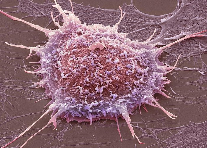 Cervical Cancer Greeting Card featuring the photograph Cervical Cancer Cell, Sem by Steve Gschmeissner