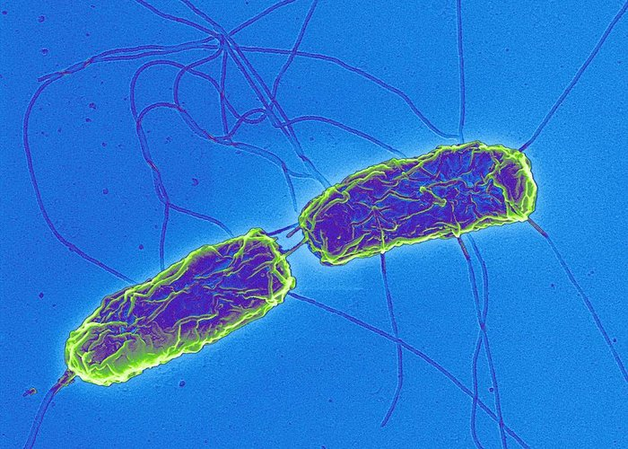 Salmonella Greeting Card featuring the photograph Salmonella Bacteria, Sem by