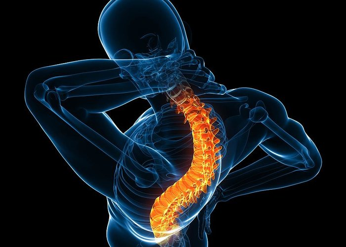 Artwork Greeting Card featuring the photograph Back Pain, Conceptual Artwork by Sciepro