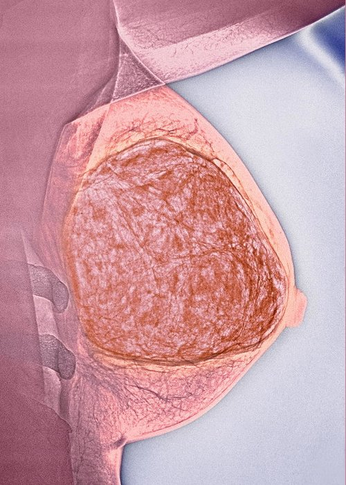 Medicine Greeting Card featuring the photograph Breast Tumour, X-ray by Cnri
