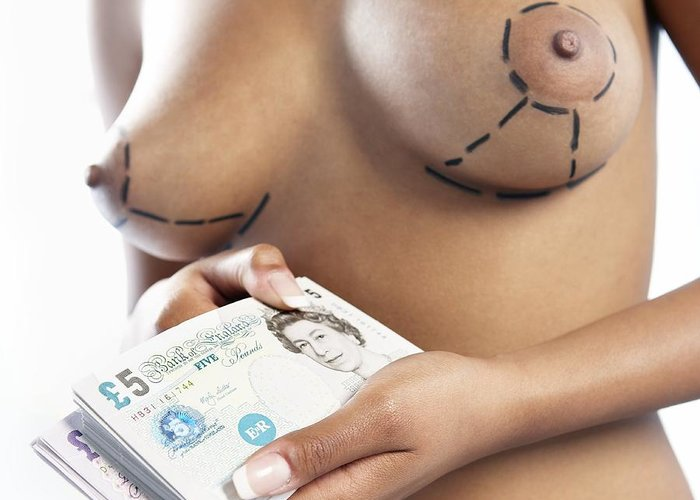 British Pound Greeting Card featuring the photograph Cosmetic Breast Surgery by Adam Gault