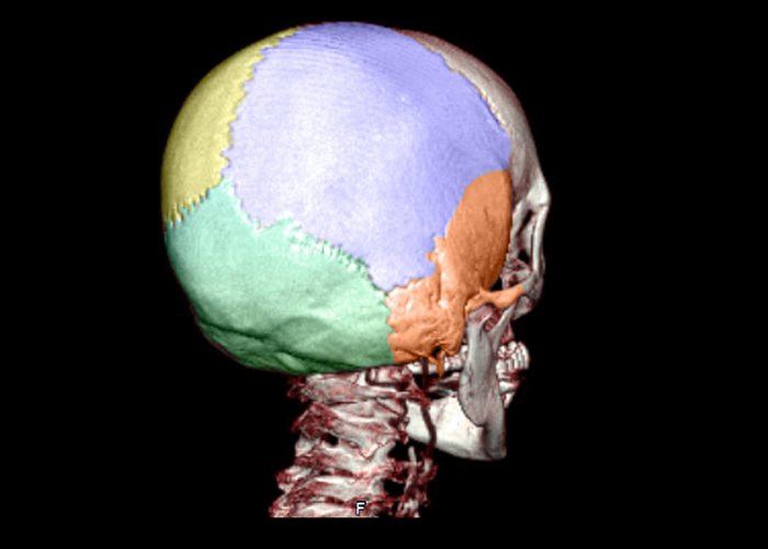 Head Greeting Card featuring the photograph Human Skull by Medical Body Scans
