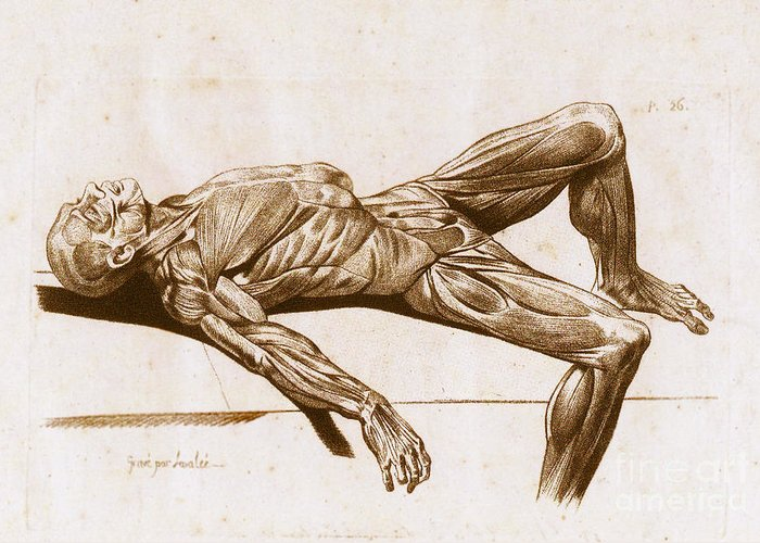 Historical Greeting Card featuring the photograph A Flayed Cadaver by Science Source