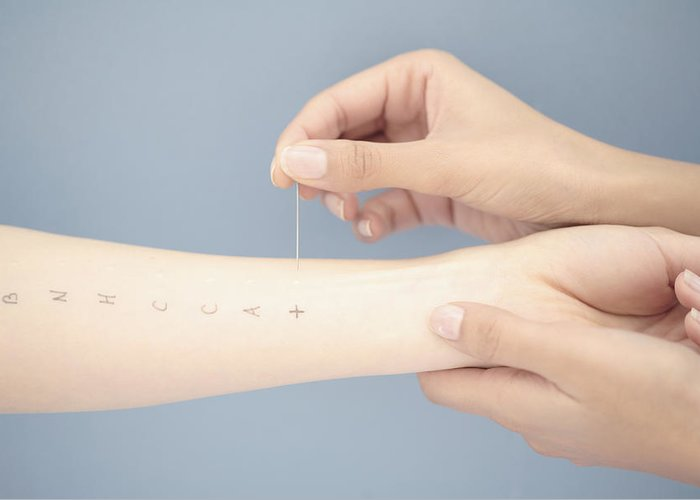 Equipment Greeting Card featuring the photograph Allergy Test by Gavin Kingcome