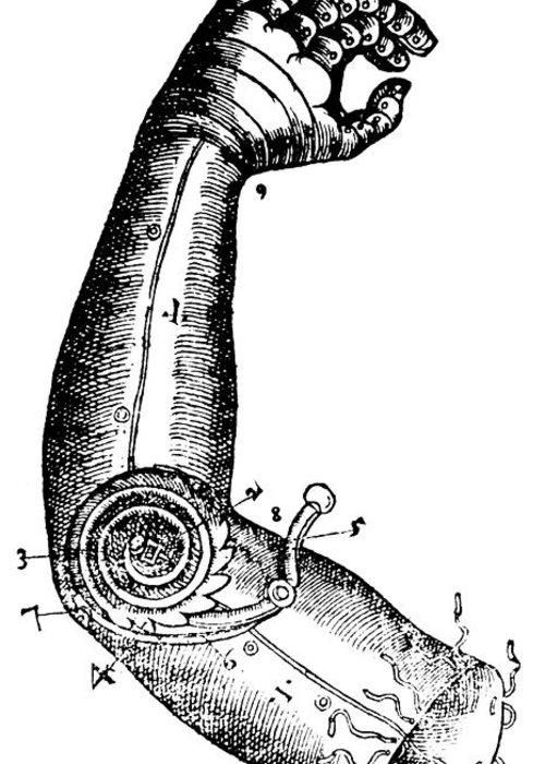 Medical Greeting Card featuring the photograph Artificial Arm Designed By Ambroise by Science Source