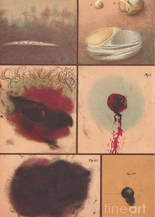 Science Greeting Card featuring the photograph Bloodstain, Blisters, Bullet Holes, 1864 by Science Source