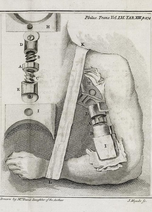 Human Greeting Card featuring the photograph Bone-setting Mechanism, 18th Century by Middle Temple Library