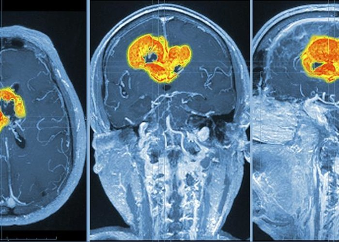 3-d Greeting Card featuring the photograph Brain Tumour, Mri Scan by Pasieka