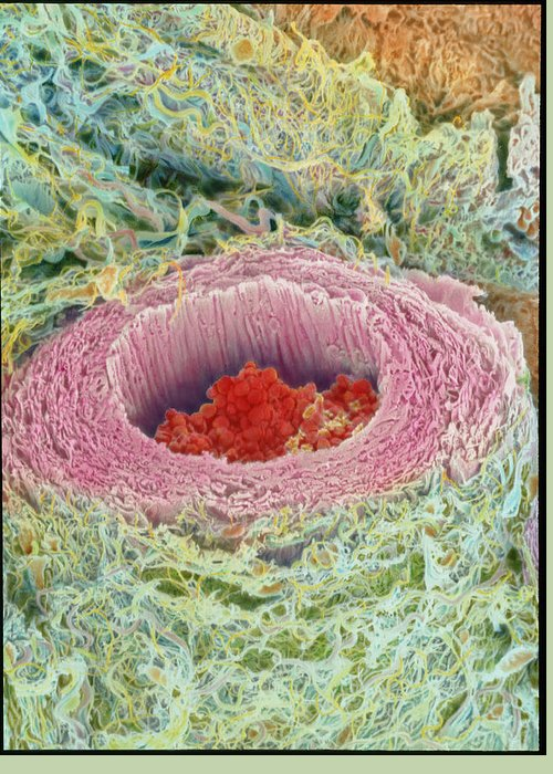 Magnified Image Greeting Card featuring the photograph Coloured Sem Of Section Through A Human Arteriole by Steve Gschmeissner