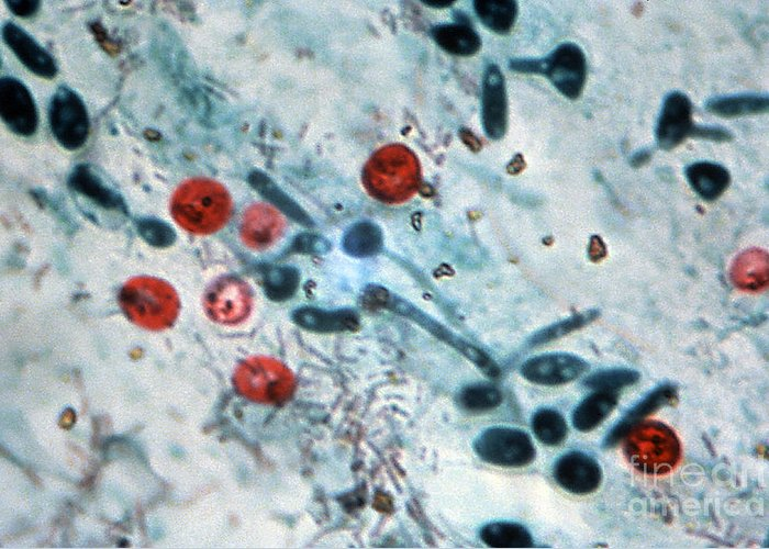 Light Micrograph Greeting Card featuring the photograph Cryptosporidium Oocysts Lm by Science Source