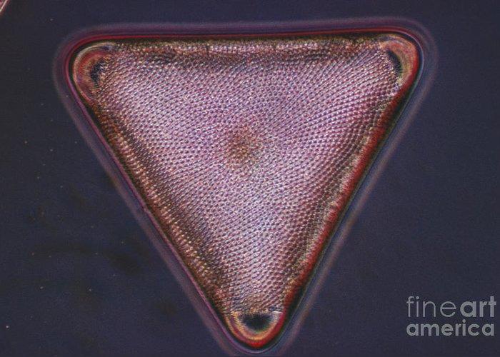 Diatom Greeting Card featuring the photograph Diatom - Triceratium Formosum by Eric V. Grave