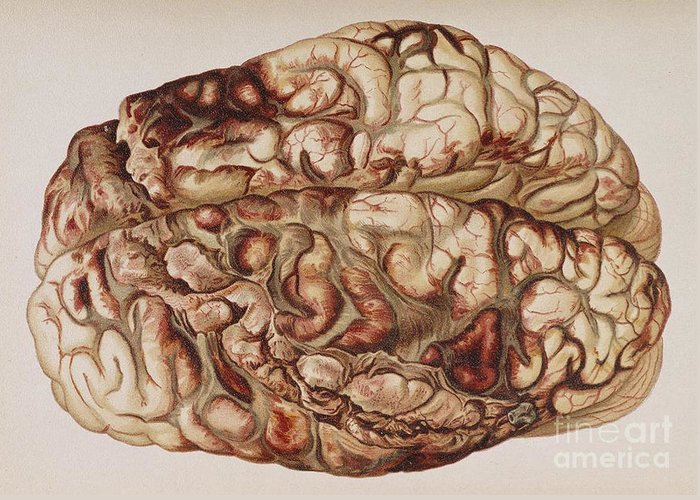 Science Greeting Card featuring the photograph Encircling Gunshot-wound In Brain, 1898 by Science Source