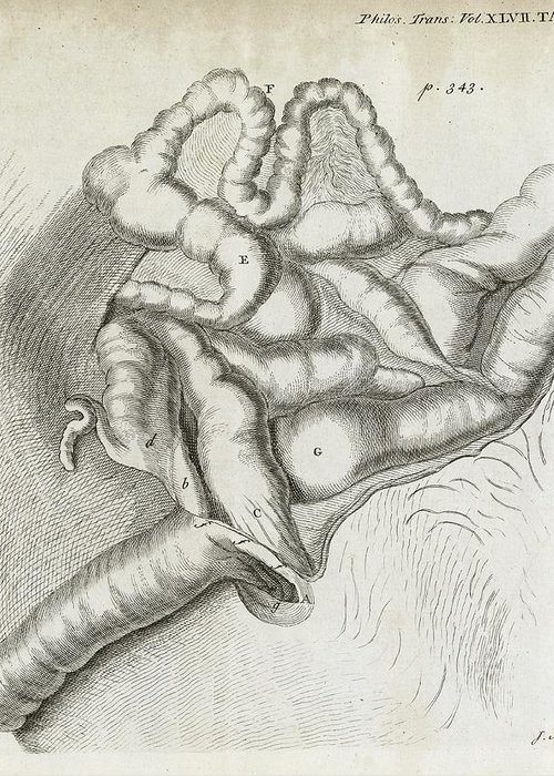 Disorder Greeting Card featuring the photograph Fistula And Hernia, 18th Century by Middle Temple Library