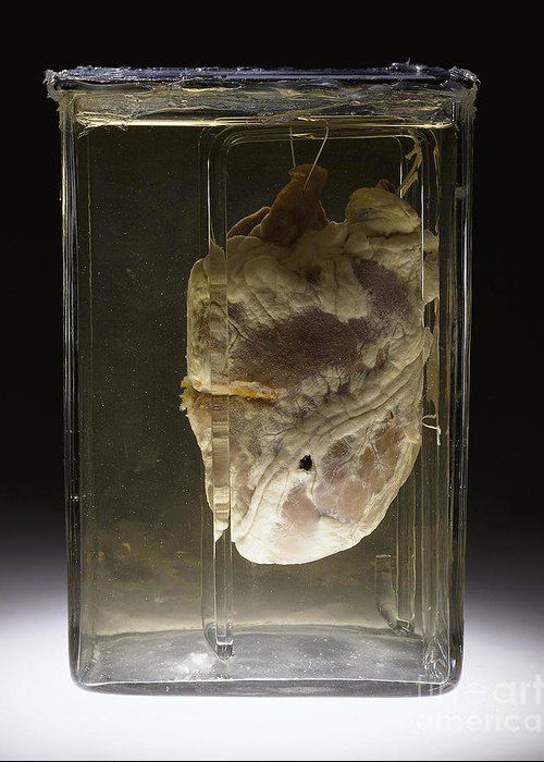 Science Greeting Card featuring the photograph Forensic Evidence, Heart Perforated by Science Source