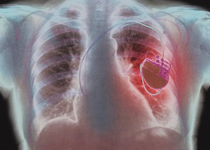 Heart Pacemaker X Ray Greeting Card For Sale By Pht