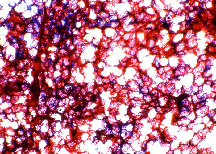 Light Microscopy Greeting Card featuring the photograph Human Lung by M. I. Walker