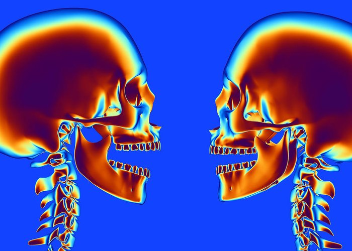 Skeleton Greeting Card featuring the photograph Human Skulls by Pasieka