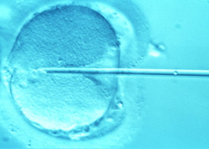 Infertile Greeting Card featuring the photograph Icsi Method Of In Vitro Fertilization by Mauro Fermariello