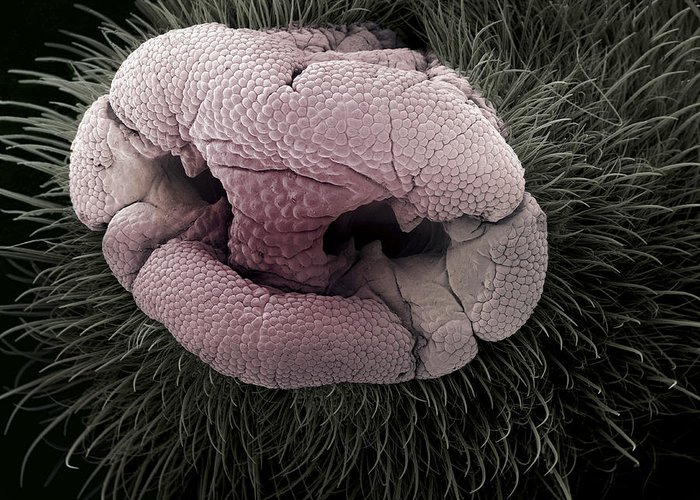 Eimer's Organ Greeting Card featuring the photograph Mole Nose, Sem by Steve Gschmeissner