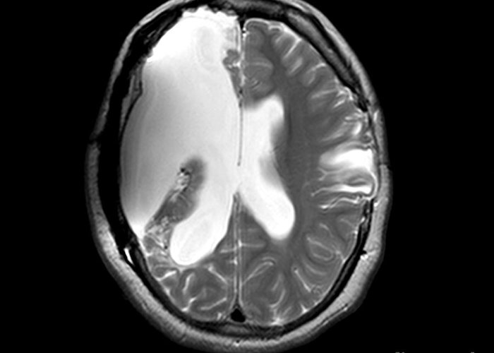 Mri Greeting Card featuring the photograph Mri Shows Near Total Hemispherectomy by Medical Body Scans