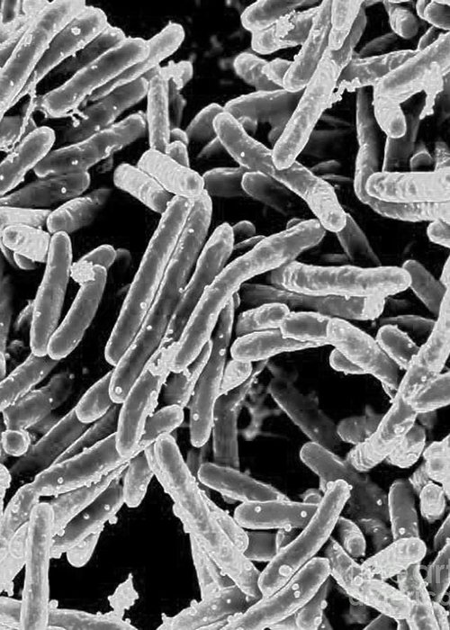Microbiology Greeting Card featuring the photograph Mycobacterium Tuberculosis Bacteria, Sem by Science Source