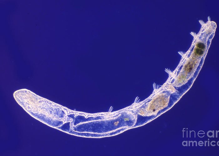 Light Microscopy Greeting Card featuring the photograph Oligochaete Worm by M. I. Walker