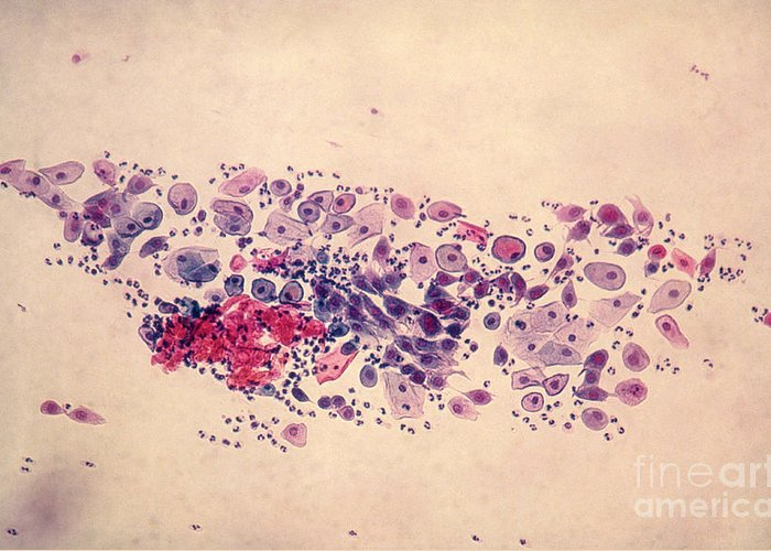 Medical Greeting Card featuring the photograph Pap Smear, Parabasal Cells by Science Source